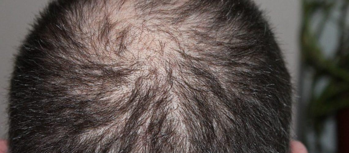 תספורת לשיער דליל